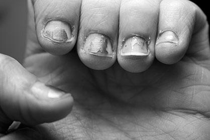 shortnails
